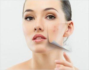Médico dermatologo- Dermatología estética